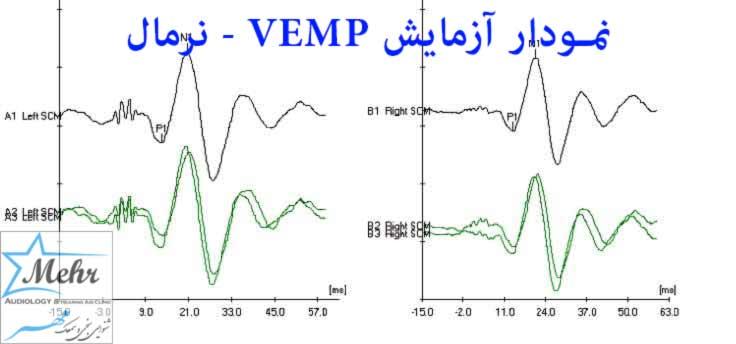 نمودار آزمایش VEMP نرمال