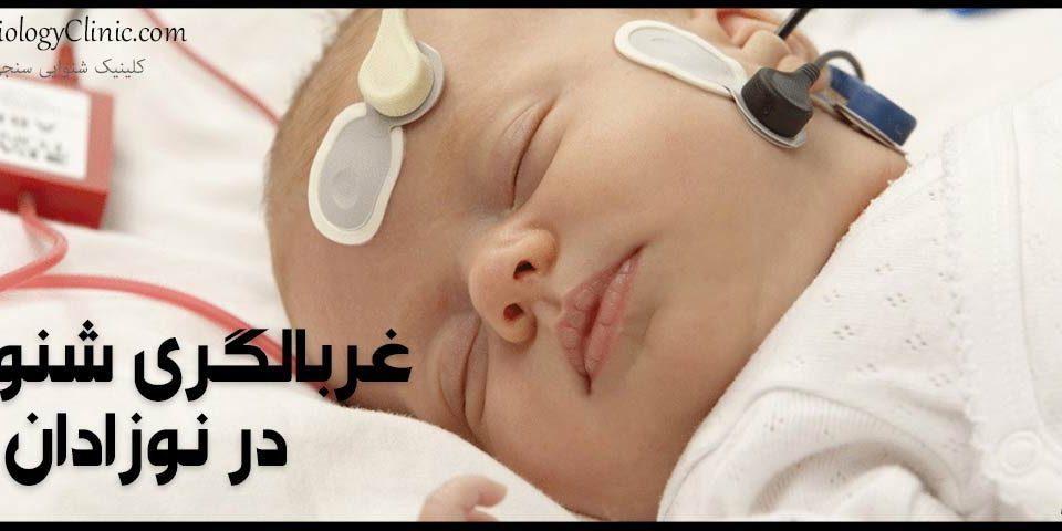 غربالگری شنوایی در نوزادان