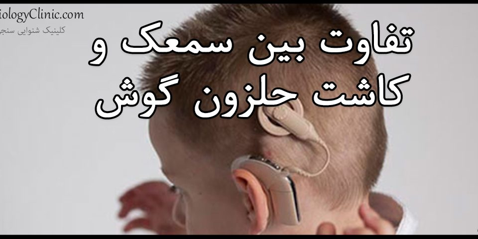 تفاوت بین سمعک و کاشتن حلزون گوش