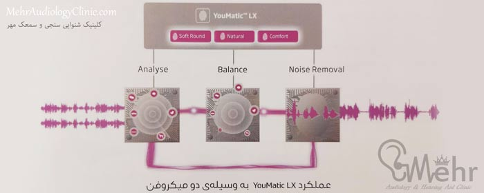 عملکرد YouMatic LX